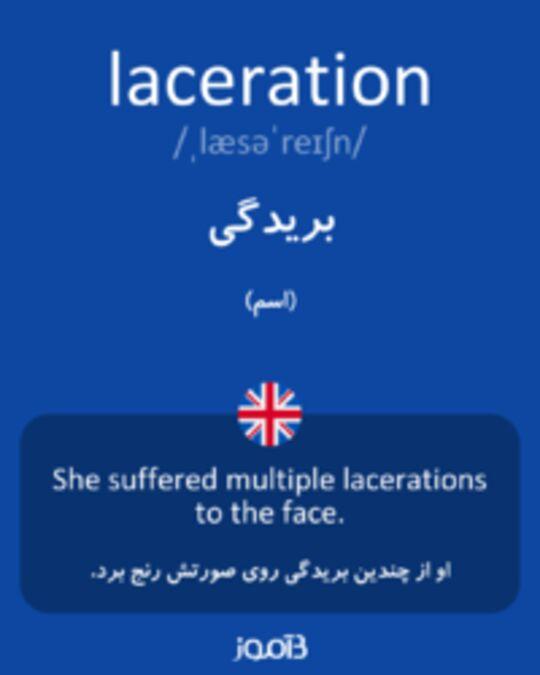 تصویر laceration - دیکشنری انگلیسی بیاموز